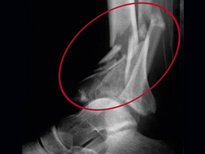 X-ray of a joint fracture