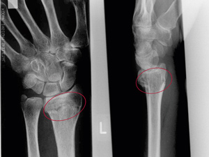 X-ray of a joint fracture in the wrist